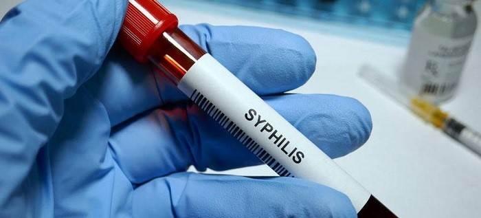 تشخیص آزمایشگاهی سیفیلیس