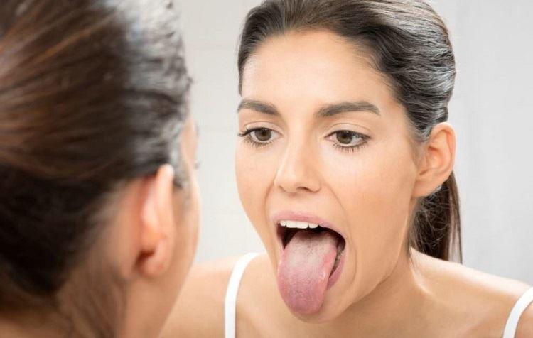درمان التهاب زبان و گلوسیت