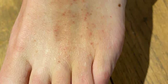 علائم و نشانه های پوستی کرونا