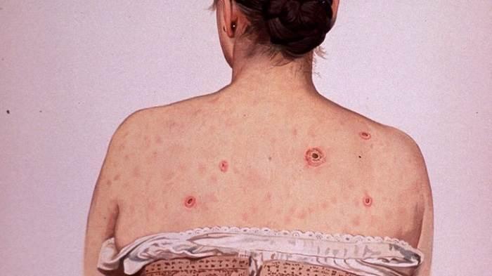 عوارض مرتبط با بیماری سیفیلیس