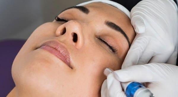 میکرونیدلینگ نقاط سیاه پوست را کاهش میدهد